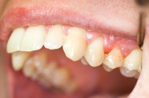 periodontist Fairfax
