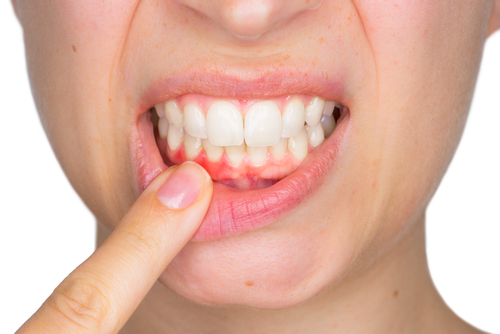 close-up of a woman pulling down her lip with her finger to show inflamed gums